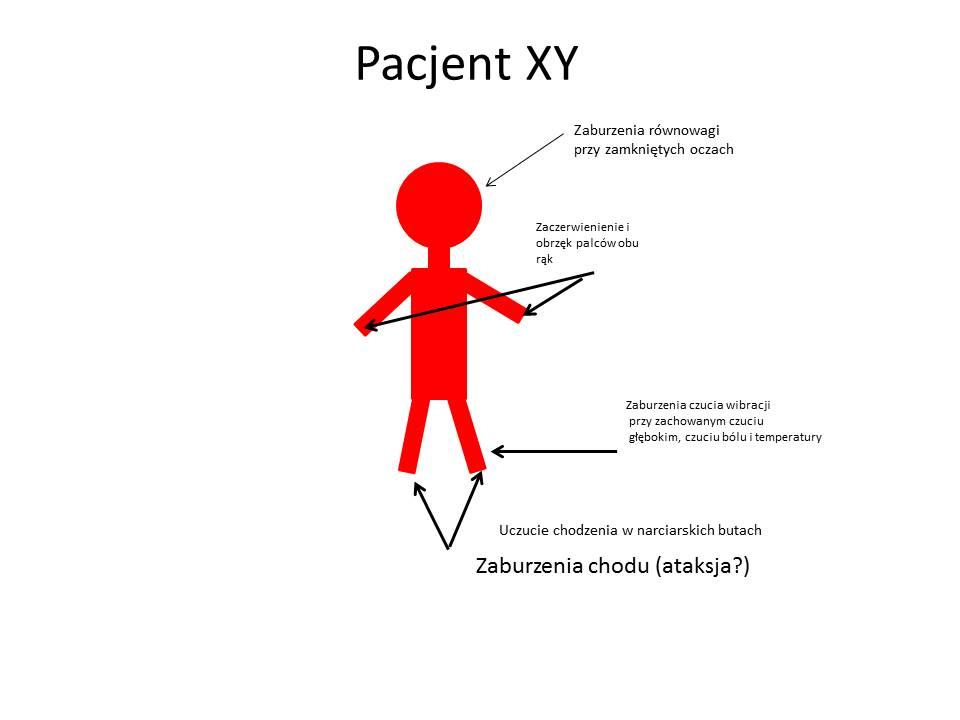 Pacjent XY- objawy neurolog