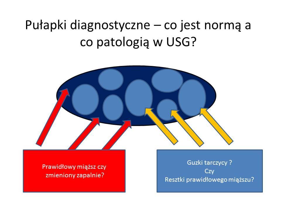 Pułapki diagnostyczne – USG